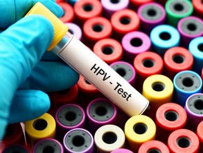 HPV testing in cervical cancer screening